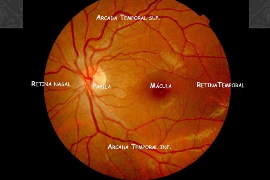 El fondo del ojo en la Atención Primaria | Metges de Catalunya